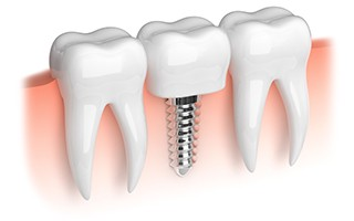 http://www.mardenta.com/wp-content/uploads/2015/11/dental-implants-marbella-320x200.jpg