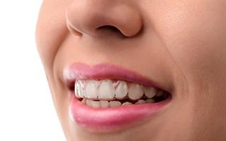 http://www.mardenta.com/wp-content/uploads/2015/11/invisalign-marbella-dentist-320x200.jpg