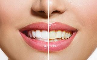 http://www.mardenta.com/wp-content/uploads/2015/11/teeth-whitening-marbella-320x200.jpg