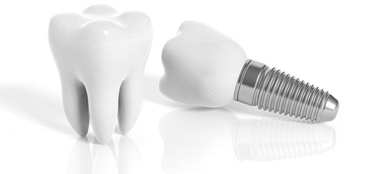 Marbella Dental Implants