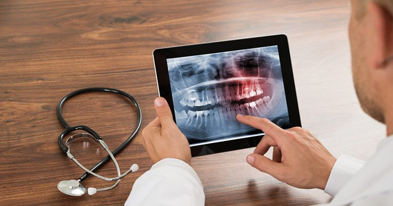 common dental problems | problemas dentales marbella