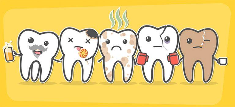 tooth decay marbella | caries dental