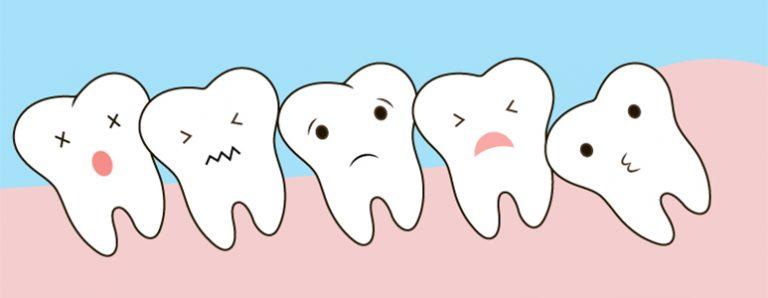 wisdom teeth marbella | muelas del juicio