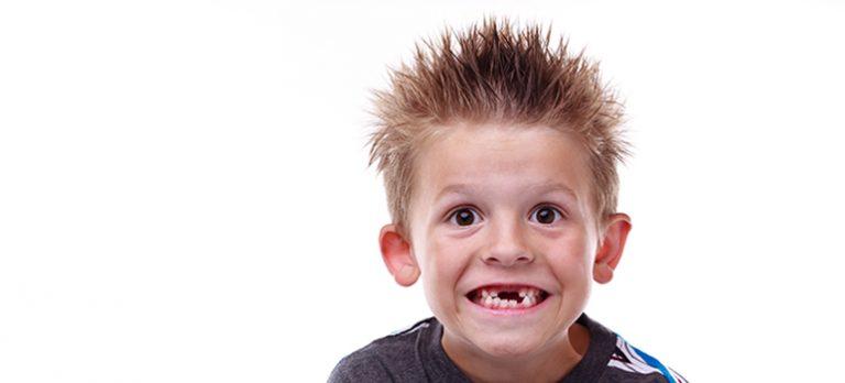 Child Losing Teeth